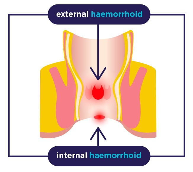 External and internal haemorrhoid
